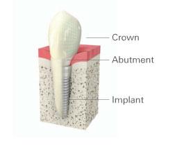 dental-implant graphic