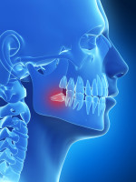 wisdom-tooth-image
