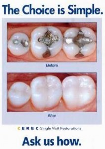 cerec photo