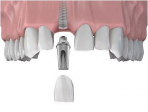 dental-implant graphic 2