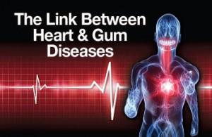 heart-gum-diseases image