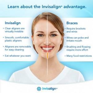 vs braces