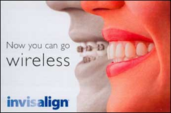 Invisalign-Go-Wireless