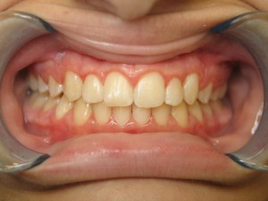 Invisalign After July 2020