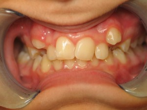 Invisalign Before July 2020